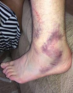 Tyson Fury ankle1