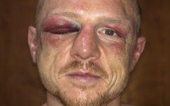 Luke_Jackson_injuries