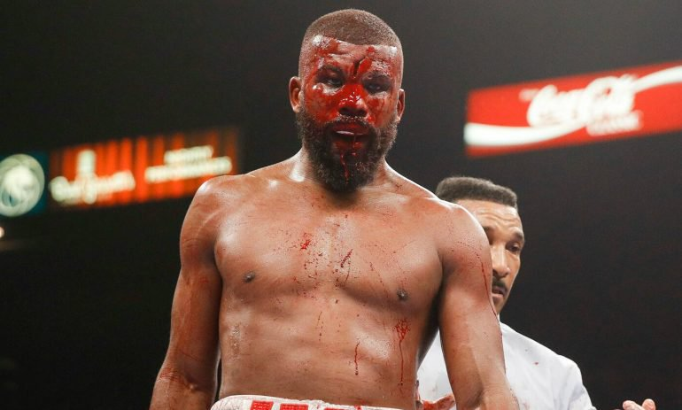 badou-jack-cut-cropped-770×463